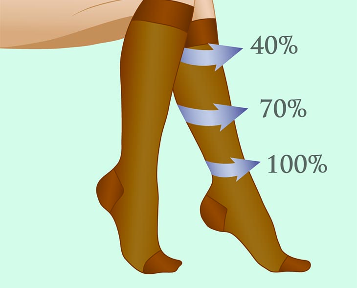 compression socks benefits