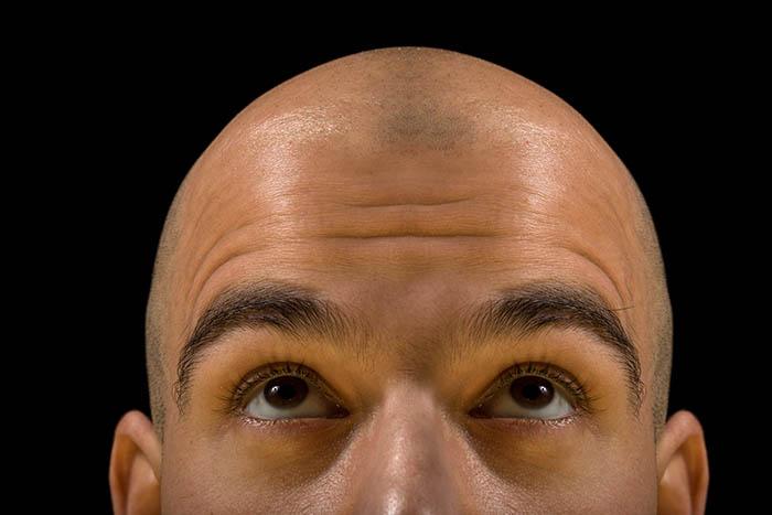 best sunscreen for balding head