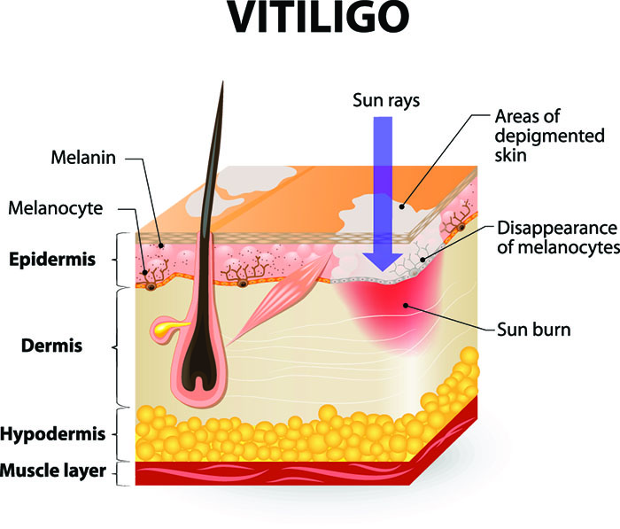 best sunscreen for vitiligo