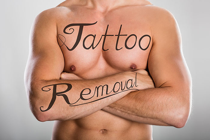 tattoo removal creams that work