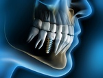 implant dentistry and dental implant